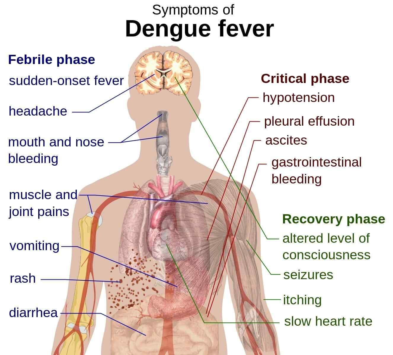 Dengue Fever: Symptoms, Foods To Eat And Avoid